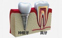 影响种植牙寿命的因素