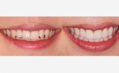 怎么做好口腔保健工作