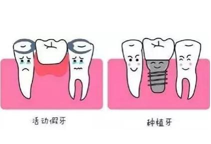 种植牙与假牙到底有哪些区别