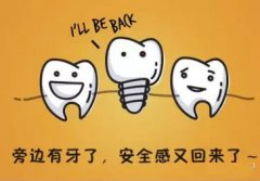 种植牙时要知道什么呢