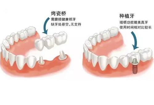 烟台种植牙与烤瓷牙两者各自的优缺点