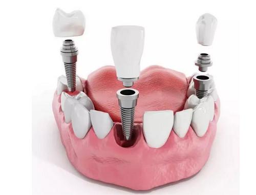 烟台种植牙优点和缺点有哪些