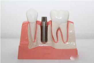 为什么现代人都选择种植牙?
